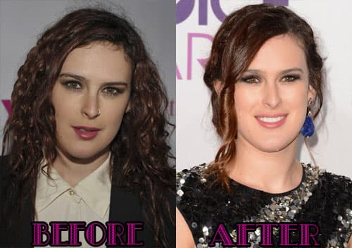 Hollywood Before And After Plastic Surgery 1