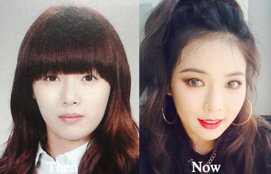 Kim Hyuna Before And After Plastic Surgery 1