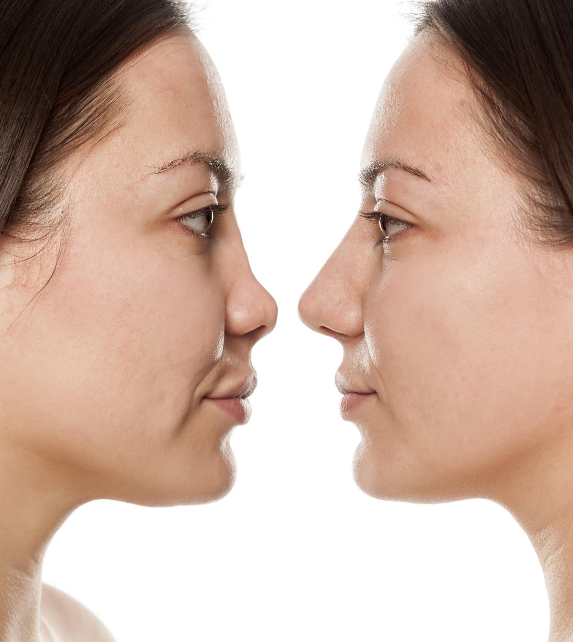 Before And After Multiple Plastic Surgery 1