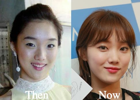 Good Before And After Plastic Surgery Eyes 1