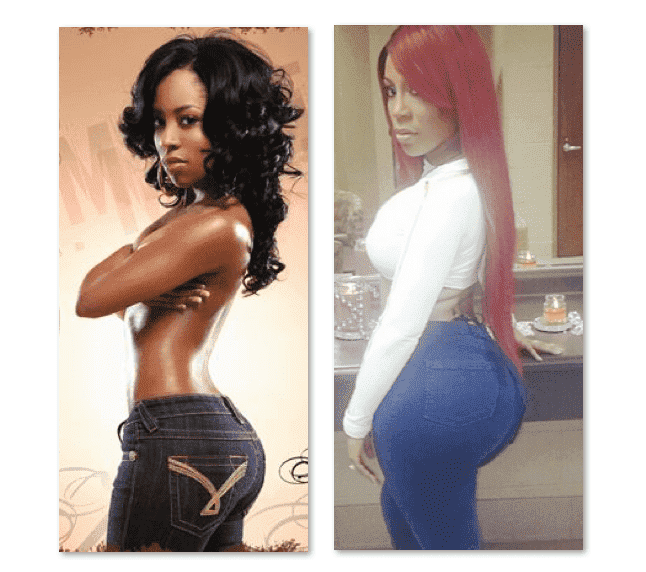 K Michelle Before Plastic Surgery Pictures 1