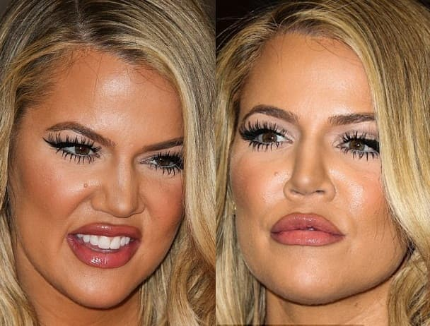 Khourtney Before And After Plastic Surgery 1