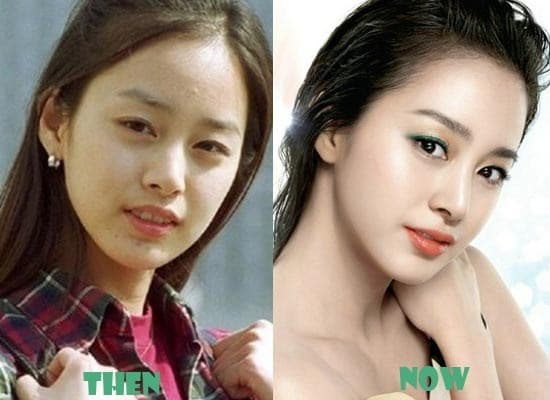 Kim Tae Hee Before Plastic Surgery Picture 1