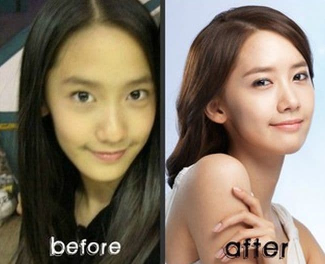 Luna Before And After Plastic Surgery 2016 1