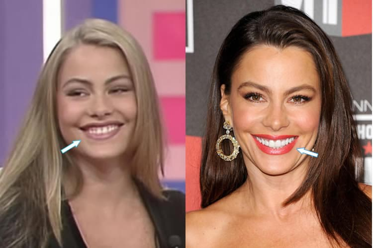 Modern Family Plastic Surgery Before After 1