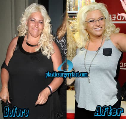 Phoenix Marie Before After Plastic Surgery 1