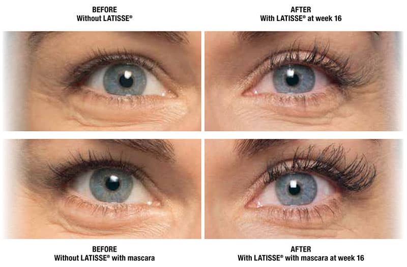 Plastic Surgery Before And After Eyelashes 1