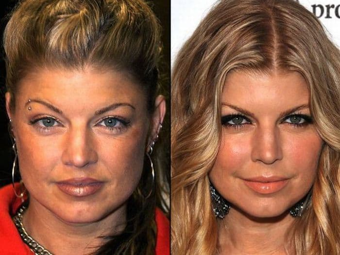 The Stars Before And After Plastic Surgery 1