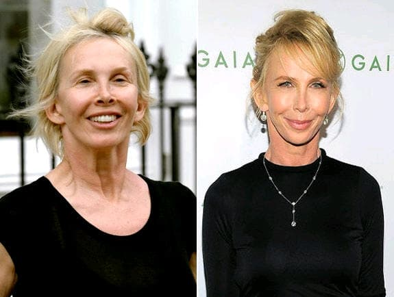 Trudie Styler Plastic Surgery Before After 1