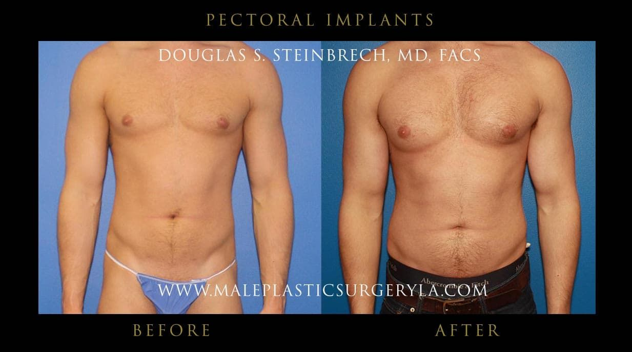 Before And After Body Lift Plastic Surgery 1