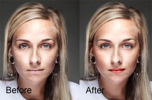 Before After Plastic Surgery Free Software 1
