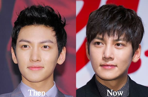 Ji Chang Wook Plastic Surgery Before After 1