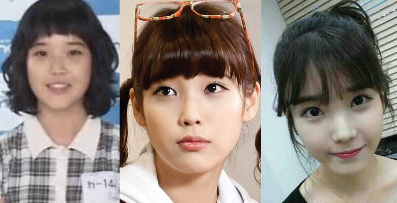 Poor Before And After Plastic Surgery Eyes 1