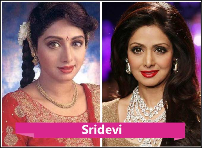 Plastic Surgery Before And After Kollywood 1