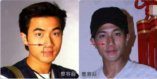 Zheng Kai Plastic Surgery Before And After 1
