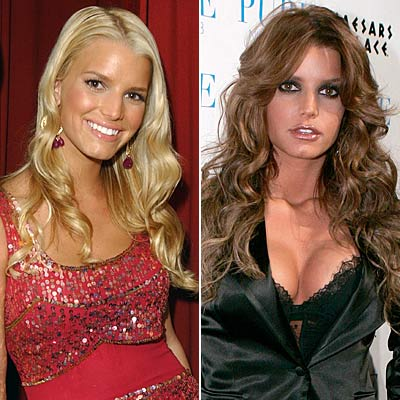 Ashlee Simpson Before And After Plastic Surgery photo - 1