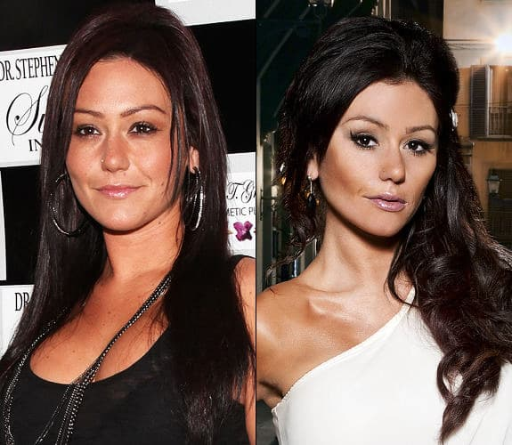 Chelsea Houska Before And After Plastic Surgery photo - 1