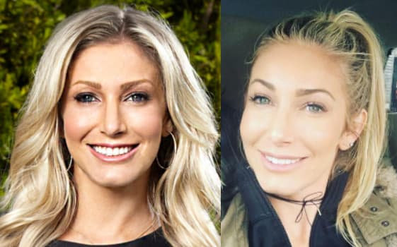 Heather Bilyeu Plastic Surgery Before And After photo - 1