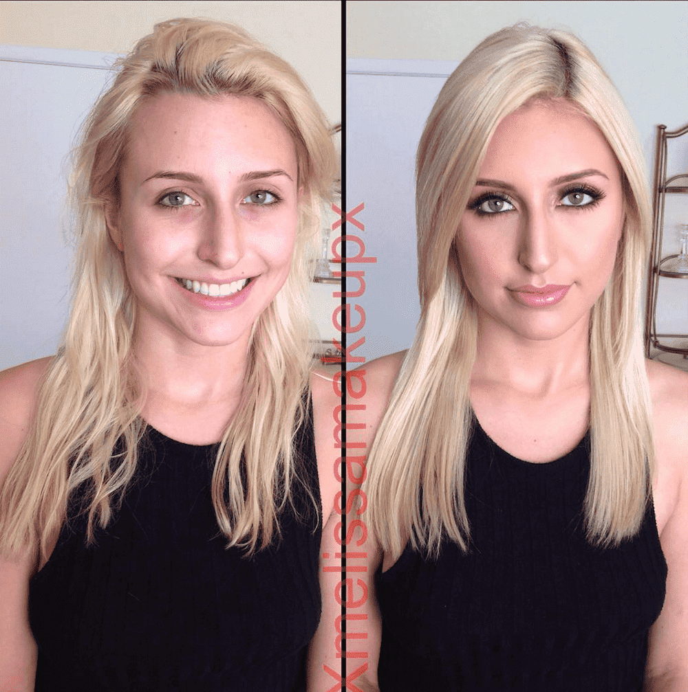 Phoenix Marie Before And After Plastic Surgery photo - 1