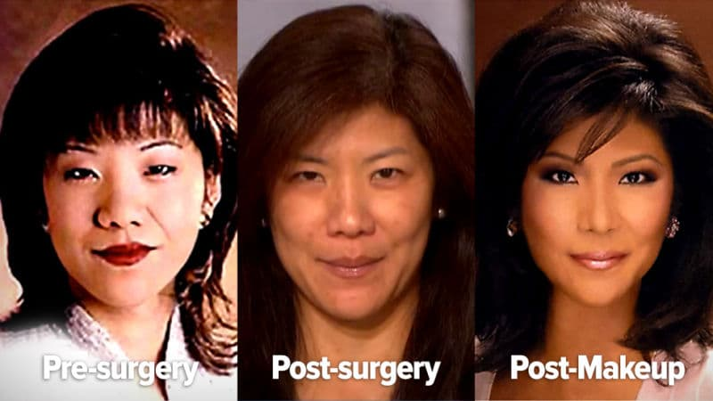 Julie Chen Before And After Plastic Surgery 1