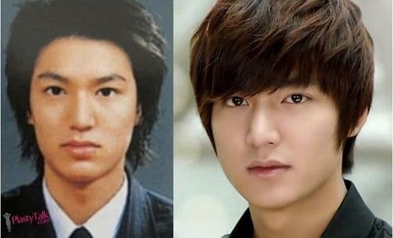 Lee Min Ho Plastic Surgery Before And After 1