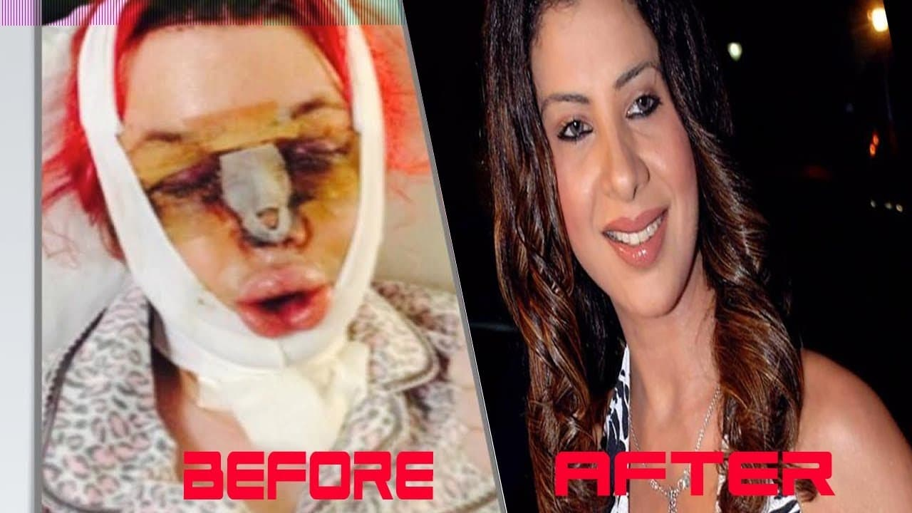 Plastic Surgery Before And After Gone Wrong 1