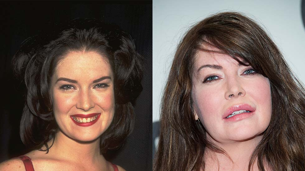 Plastic Surgery Nightmares Before And After 1