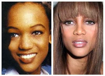 Tyra Banks Before And After Plastic Surgery 1