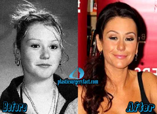 Jwoww Before And After Face Plastic Surgery 1