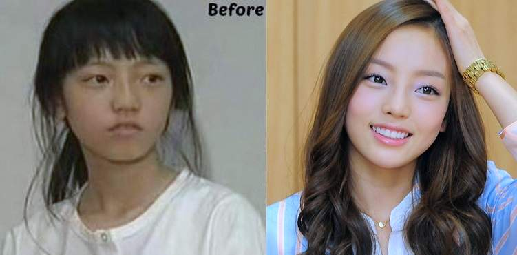 Nam Gyu Ri Plastic Surgery Before And After 1