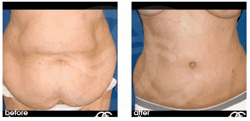 Post Bariatric Plastic Surgery Before After 1