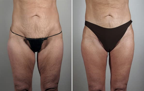 Plastic Surgery Thigh Lift Before And After 1