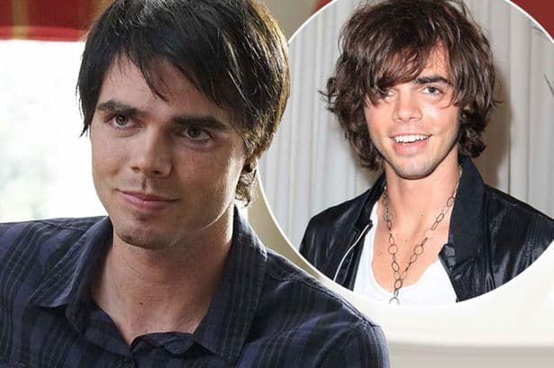 Reid Ewing Before And After Plastic Surgery 1