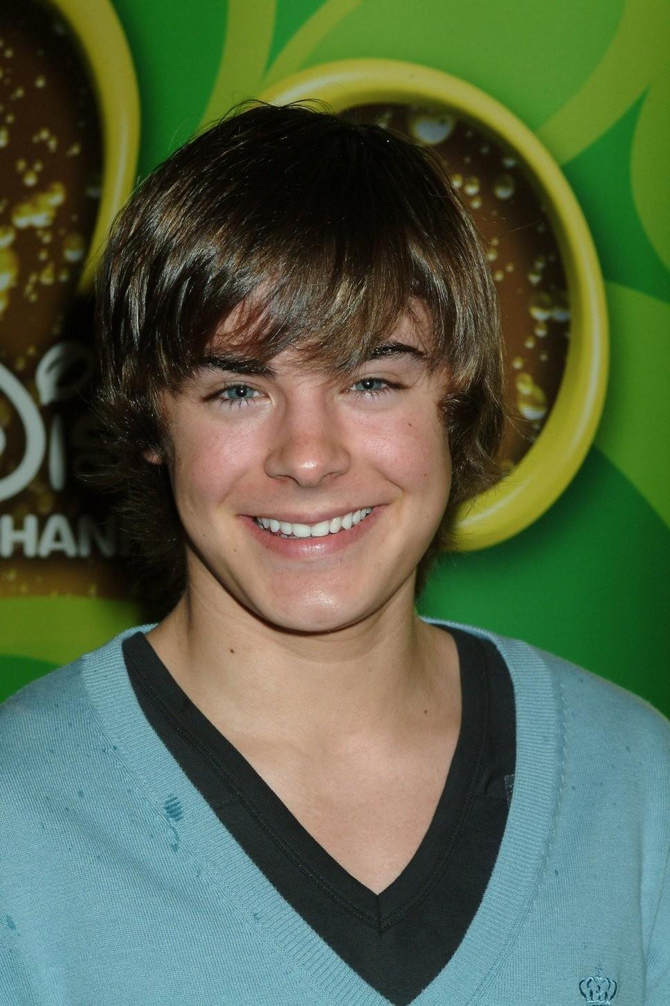 Zac Efron Before And After Plastic Surgery 1