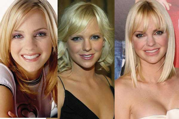 Anna Faris Plastic Surgery Before And After 1