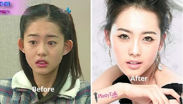 Little Kim Before And After Plastic Surgery 1