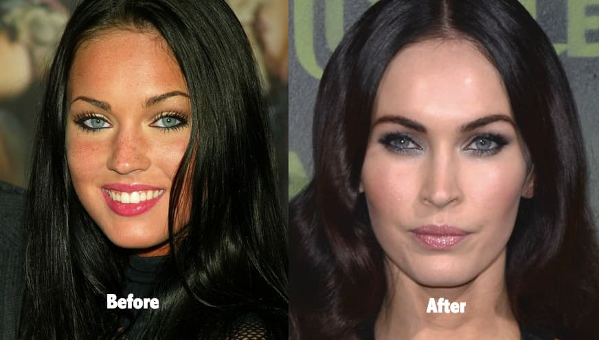 Meghan Fox Before And After Plastic Surgery 1