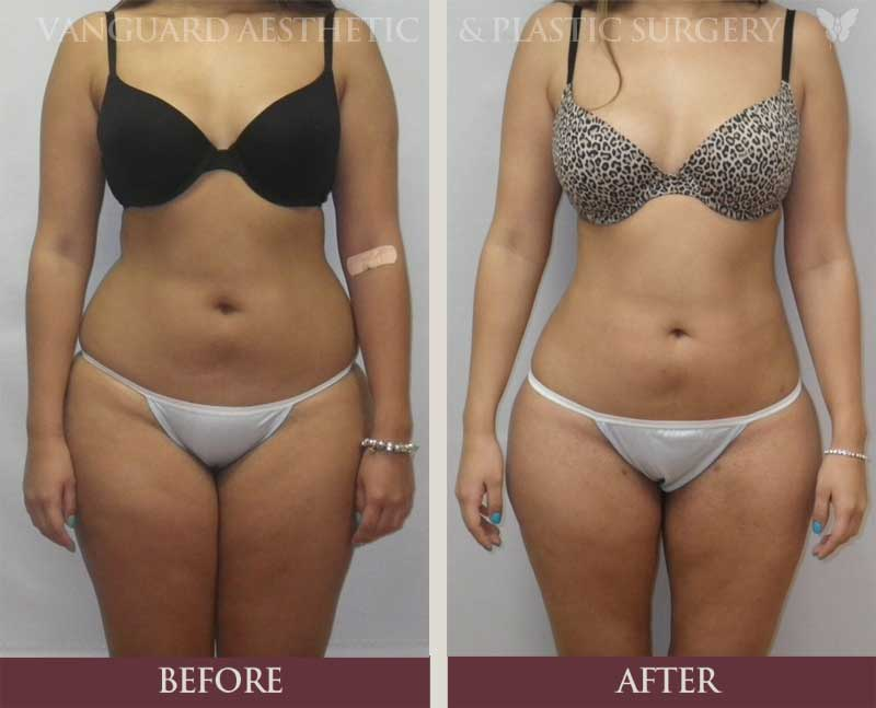 Plastic Surgery Procedures Before And After 1