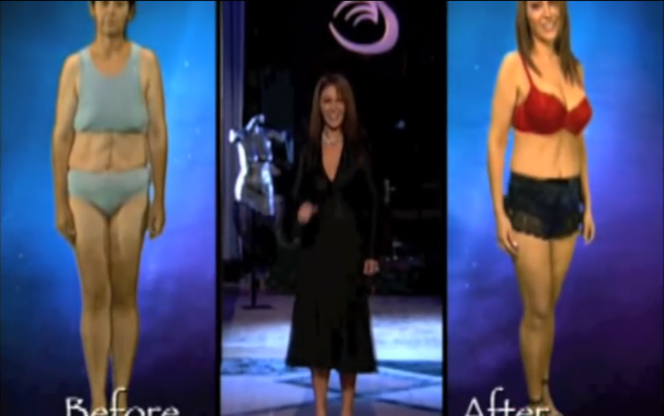 Swan Plastic Surgery Show Before And After 1