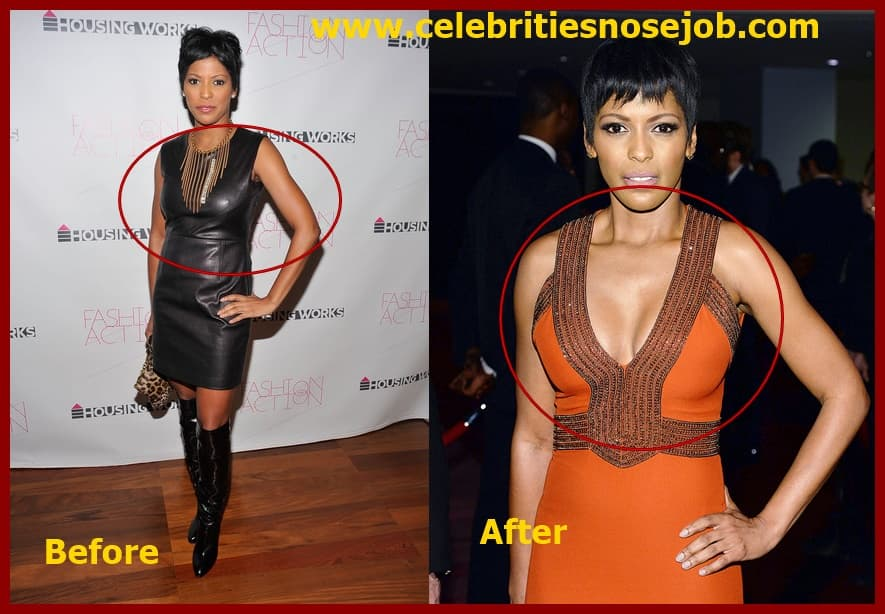Tyra Banks Plastic Surgery Before And After 1