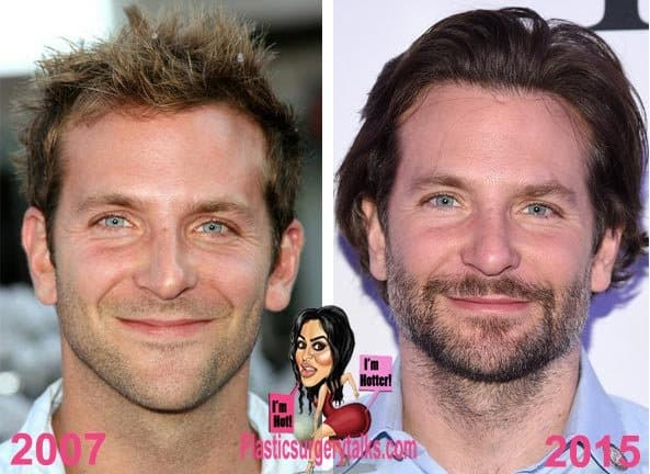 Before After Plastic Surgery Bradley Cooper 1