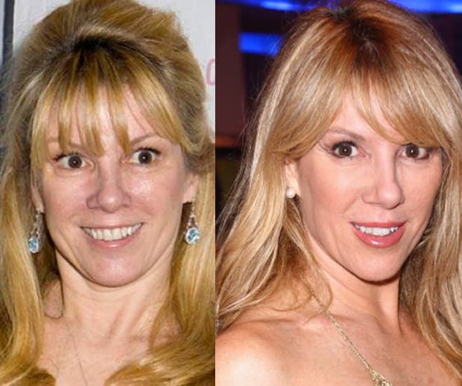 Dina Manzo Before And After Plastic Surgery 1