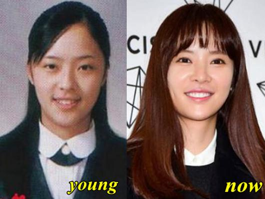 Hwang Jung Eum Before After Plastic Surgery 1