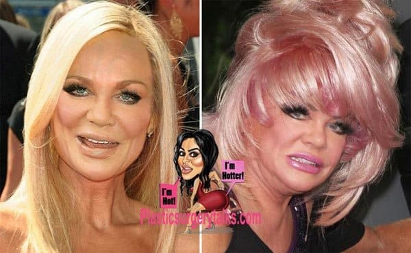 Jan Crouch Before And After Plastic Surgery 1