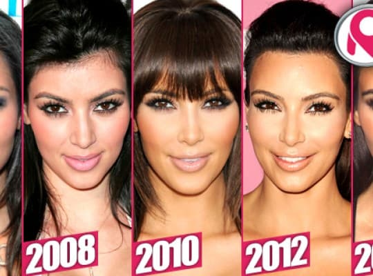Kanye West Plastic Surgery Before And After 1