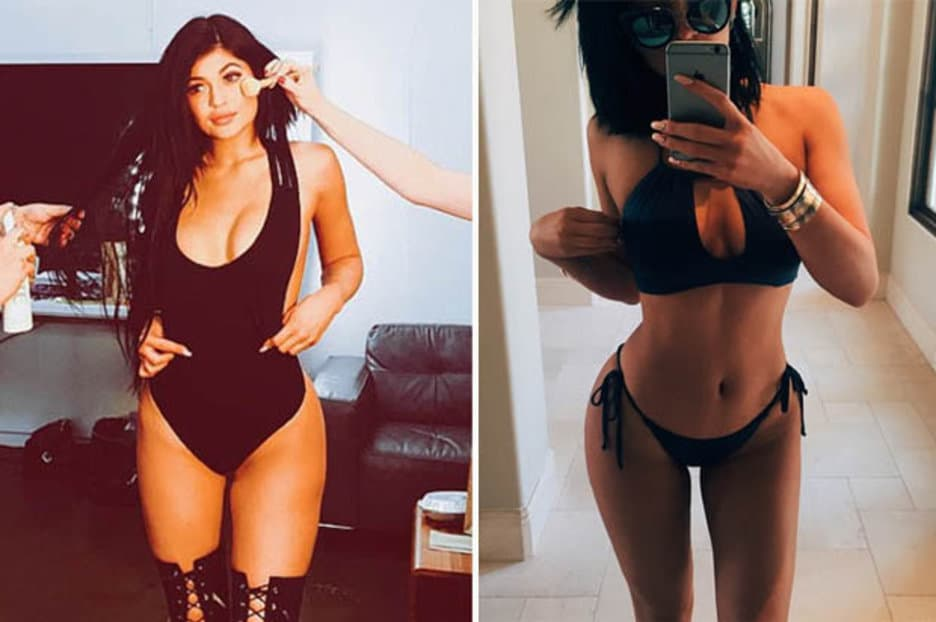 Kylie Body Before And After Plastic Surgery 1