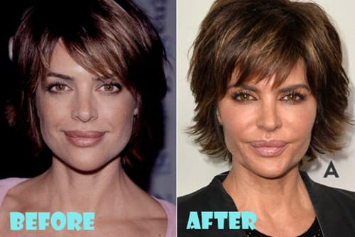 Lisa Rinna Before And After Plastic Surgery 1