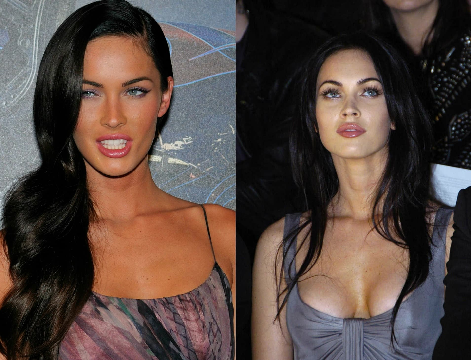 Megan For Before And After Plastic Surgery 1