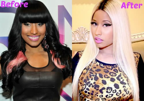 Niki Manaj Before And After Plastic Surgery 1
