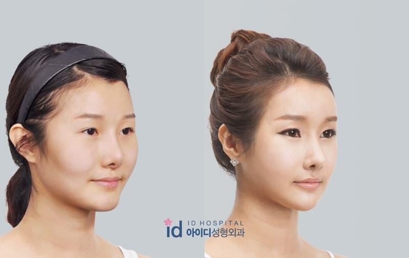 Plastic Surgery Before And After Round Face 1